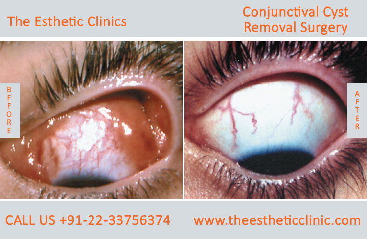 Conjuctival Cyst Removal Surgery, Eye Tumor Treatment before after photos in mumbai india