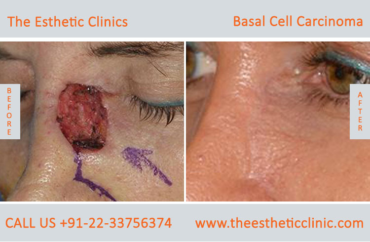 Basal Cell Carcinoma Treatment Surgery before after photos in mumbai india (2)