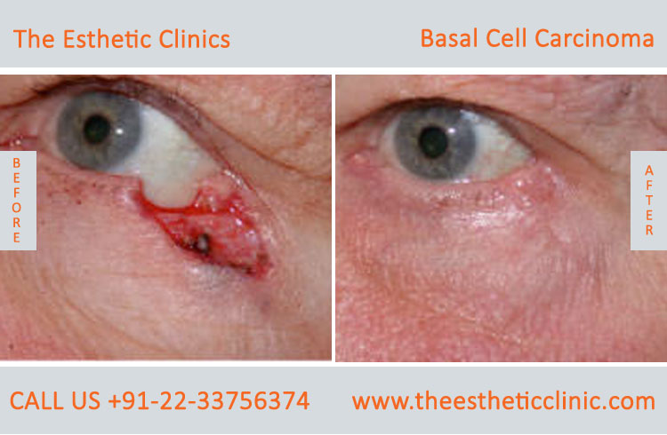 Basal Cell Carcinoma Treatment Surgery before after photos in mumbai india (3)
