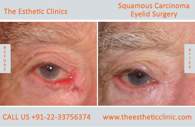 Sebaceous Carcinoma of Eyelid Surgery before after photos in mumbai india (3)