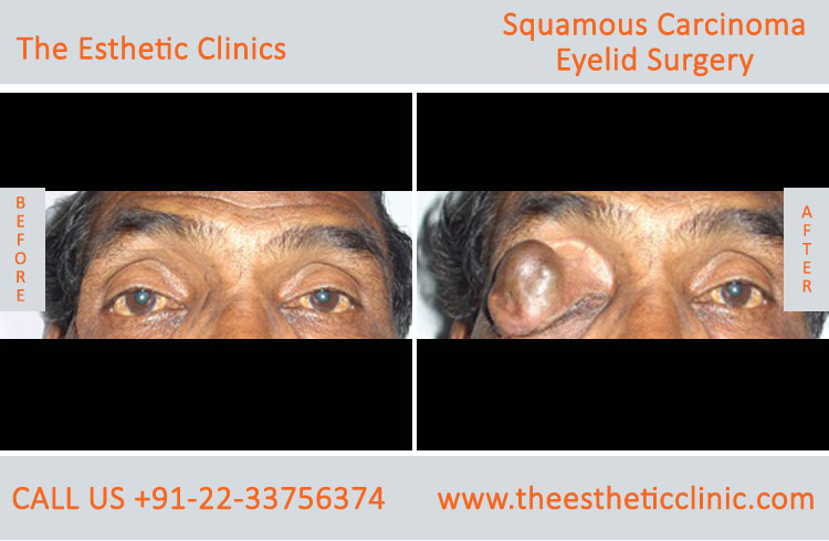 Sebaceous Carcinoma of Eyelid Surgery before after photos in mumbai india (4)