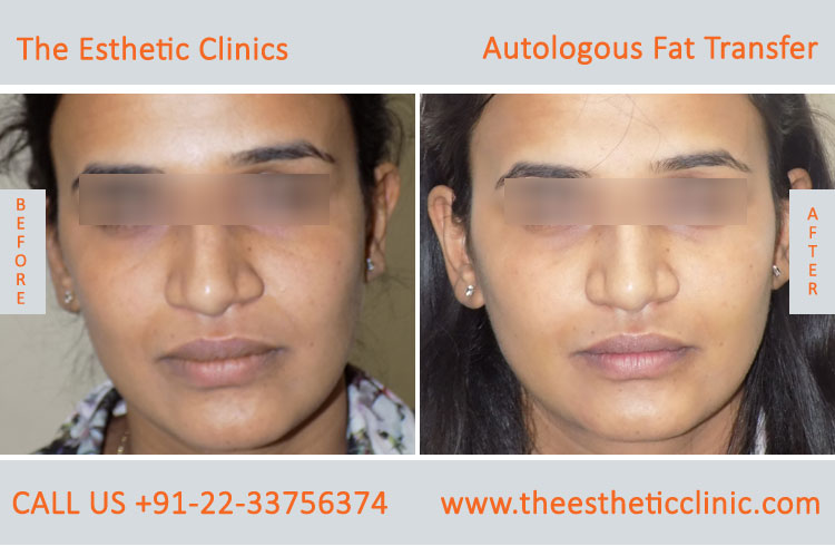 Autologous Fat Transfer, Fat Transfer Grafting, Lipofilling Fat Transfer Surgery before after photos (1 (3)