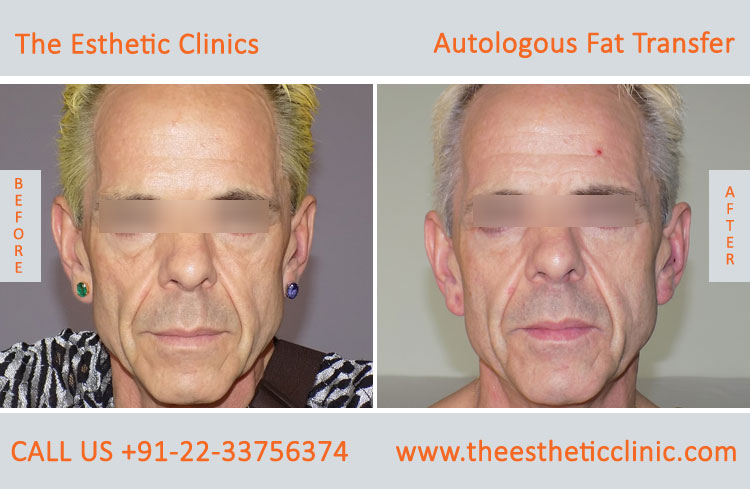 Autologous Fat Transfer, Fat Transfer Grafting, Lipofilling Fat Transfer Surgery before after photos (1 (4)