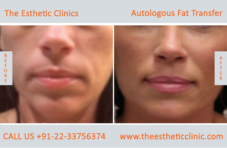 Autologous Fat Transfer, Fat Transfer Grafting, Lipofilling Fat Transfer Surgery before after photos (1 (6)