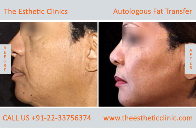 Autologous Fat Transfer, Fat Transfer Grafting, Lipofilling Fat Transfer Surgery before after photos (1 (7)