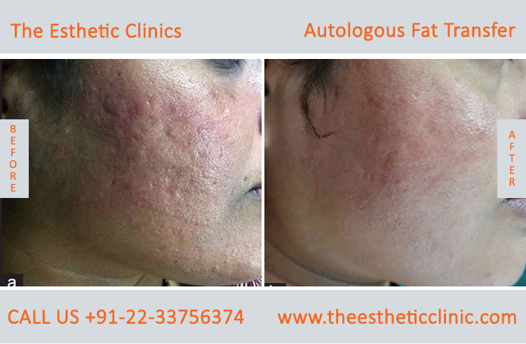 Autologous Fat Transfer, Fat Transfer Grafting, Lipofilling Fat Transfer Surgery before after photos (1)