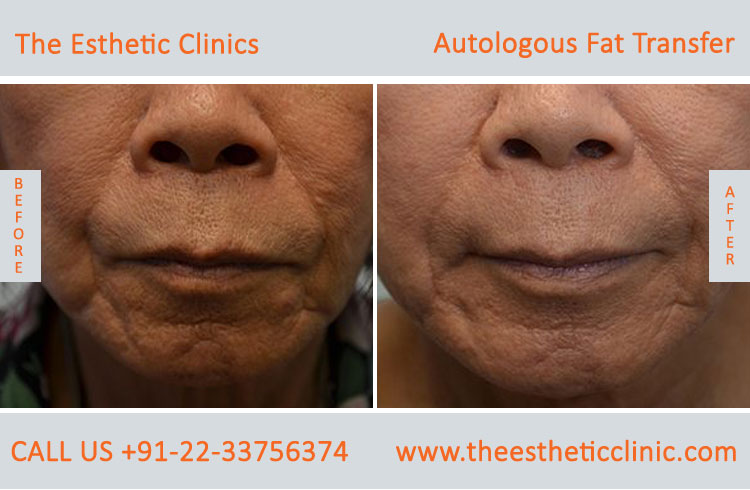 Autologous Fat Transfer, Fat Transfer Grafting, Lipofilling Fat Transfer Surgery before after photos (1
