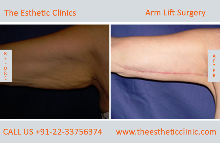 Arm Lift Surgery, Brachioplasty before after photos in mumbai india (3)