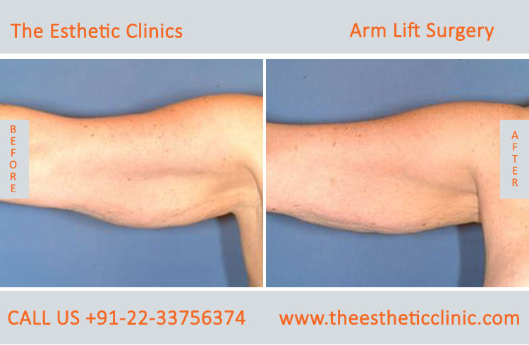 Arm Lift Surgery, Brachioplasty before after photos in mumbai india (6)