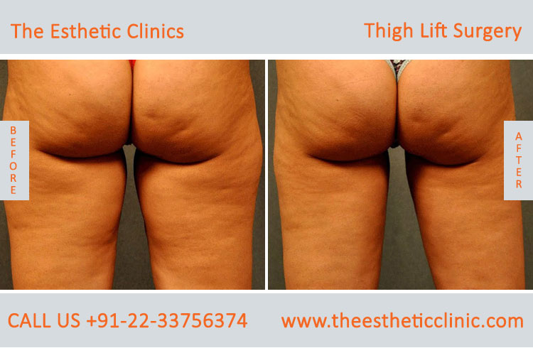 Body Contouring in Mumbai, India| Coolsculpting Cost in India | The