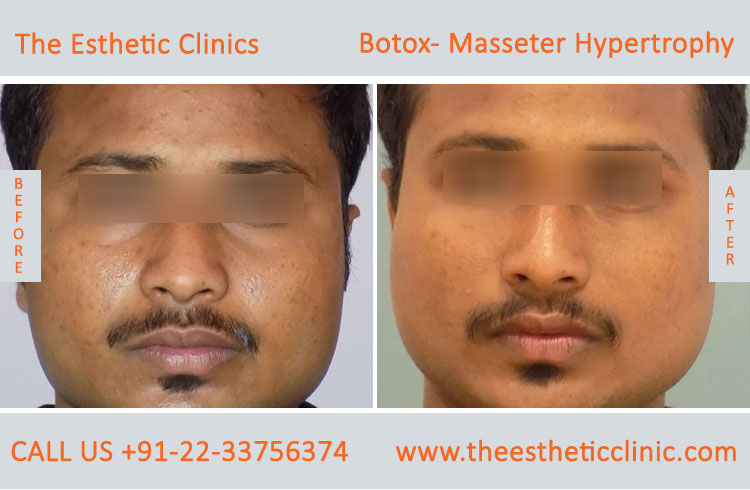 Botox Masseter Hypertrophy treatment before after photos in mumbai india (10)
