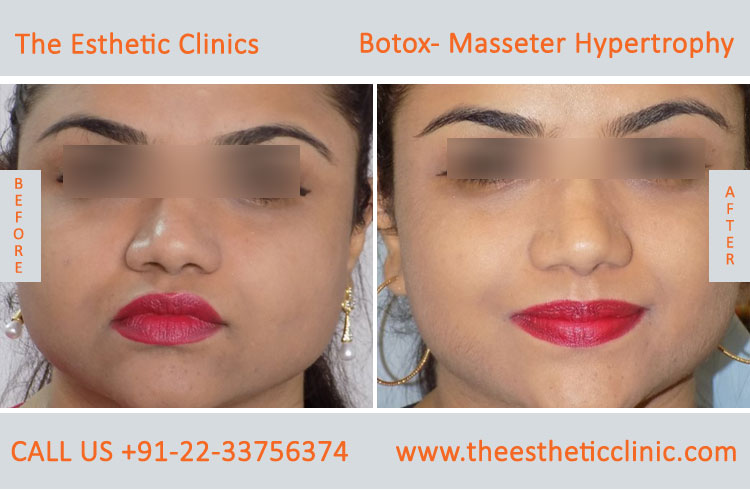 Botox Masseter Hypertrophy treatment before after photos in mumbai india (11)