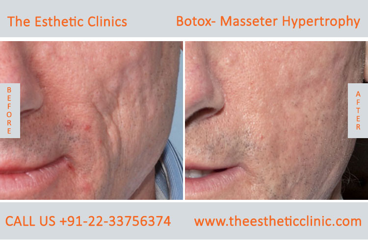 Botox Masseter Hypertrophy treatment before after photos in mumbai india (2)