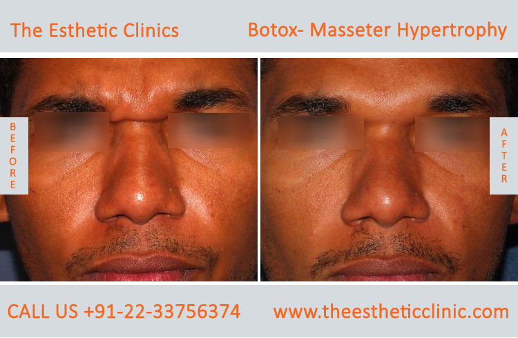 Botox Masseter Hypertrophy treatment before after photos in mumbai india (6)
