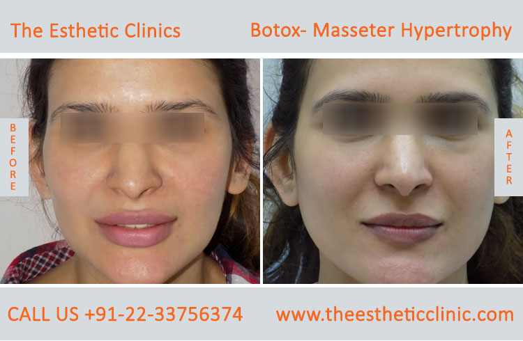 Botox Masseter Hypertrophy treatment before after photos in mumbai india (7)