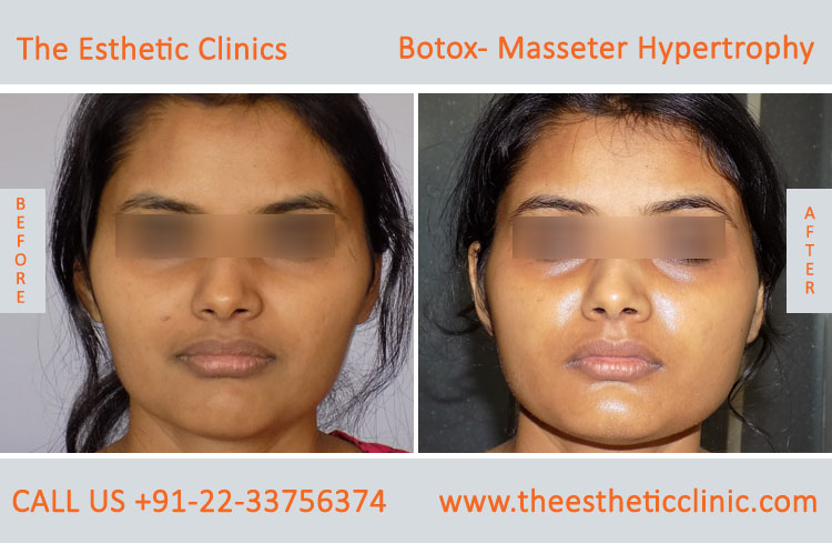Botox Masseter Hypertrophy treatment before after photos in mumbai india (8)