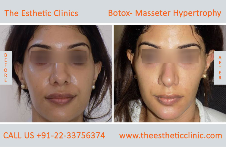 Botox Masseter Hypertrophy treatment before after photos in mumbai india (9)
