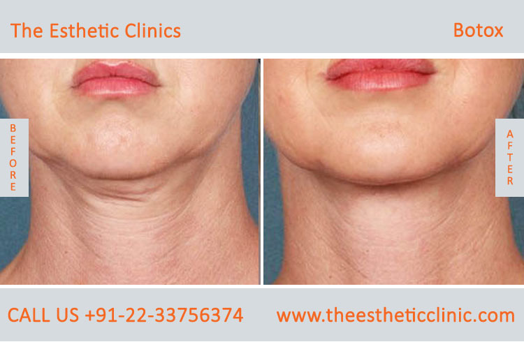 botox treatment for face wrinkles before after photos in mumbai india (2)