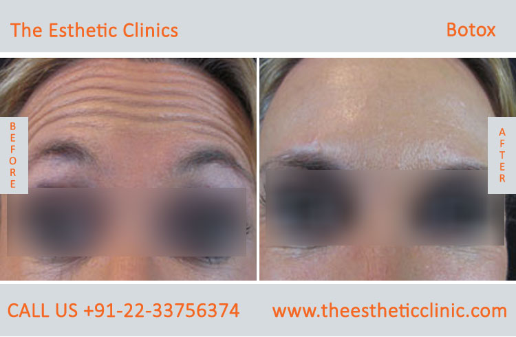 botox treatment for face wrinkles before after photos in mumbai india (3)