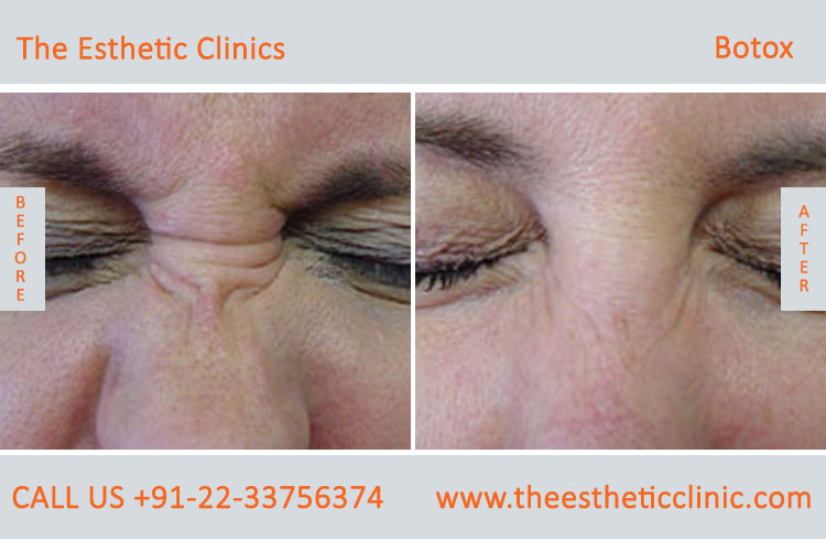 botox treatment for face wrinkles before after photos in mumbai india (4)