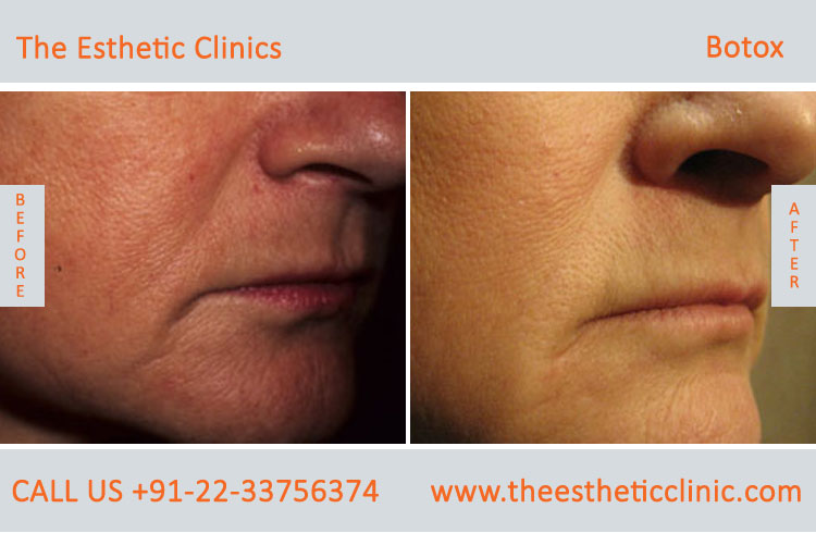 botox treatment for face wrinkles before after photos in mumbai india (5)