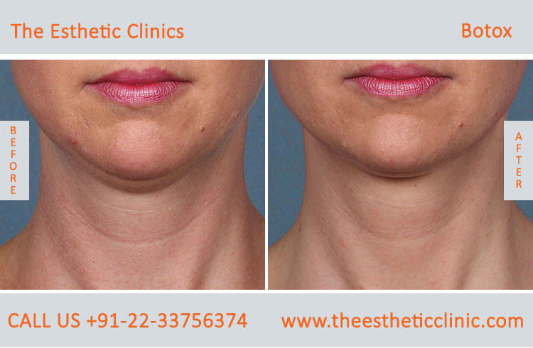 botox treatment for face wrinkles before after photos in mumbai india (7)