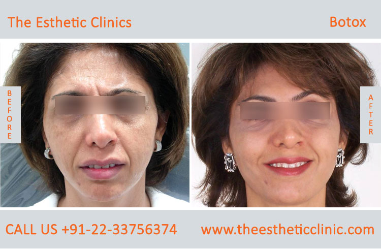 botox treatment for face wrinkles before after photos in mumbai india (8)