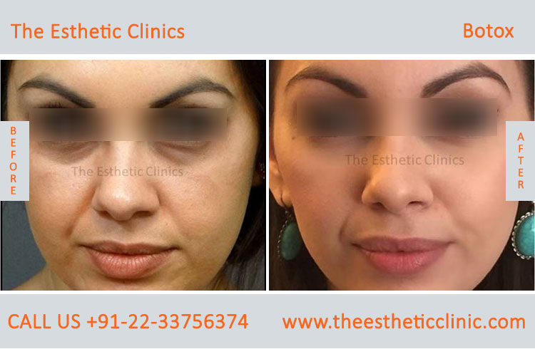 Botox Treatment Mumbai, Botox Injection Cost in India - The