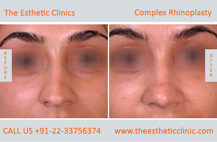 Complex Rhinoplasty, nose surgery before after photos in mumbai india (1)