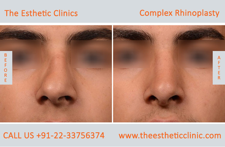 Complex Rhinoplasty, nose surgery before after photos in mumbai india (4)