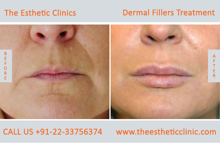 dermal fillers, cosmetic treatment before after photos in mumbai india (1)