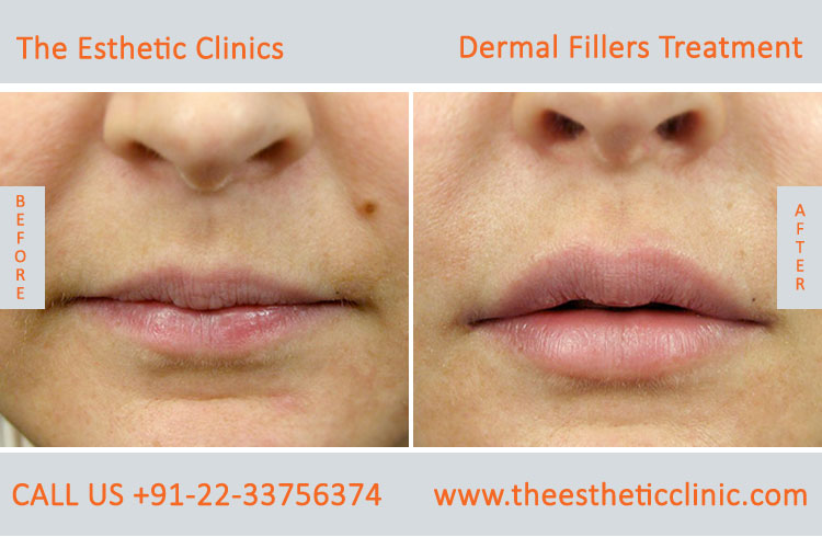 dermal fillers, cosmetic treatment before after photos in mumbai india (2)