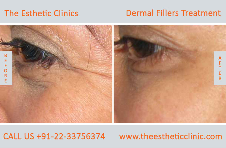dermal fillers, cosmetic treatment before after photos in mumbai india (3)