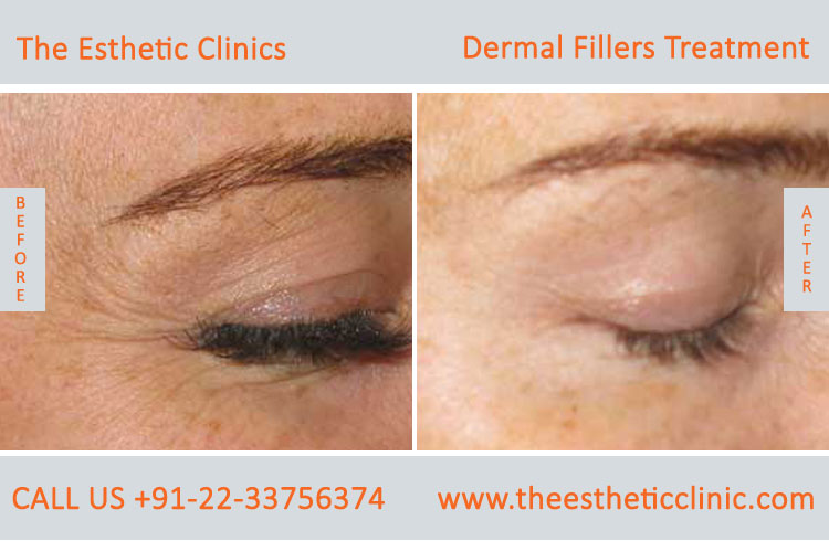 dermal fillers, cosmetic treatment before after photos in mumbai india (4)
