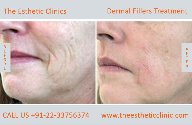 dermal fillers, cosmetic treatment before after photos in mumbai india (5)