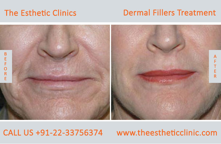dermal fillers, cosmetic treatment before after photos in mumbai india (6)