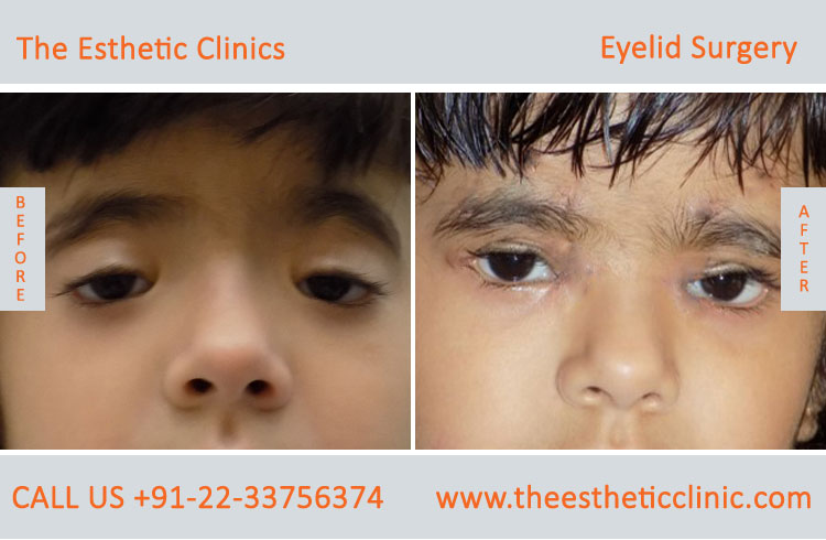 Eyelid Surgery, Blepharoplasty before after photos in mumbai india (10)