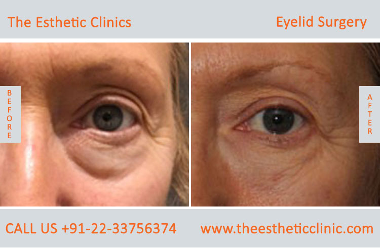 Eyelid Surgery, Blepharoplasty before after photos in mumbai india (2)