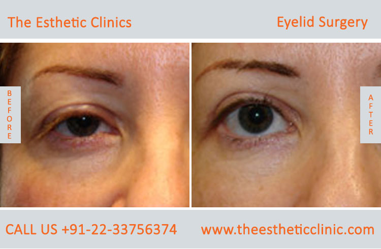 Eyelid Surgery, Blepharoplasty before after photos in mumbai india (3)