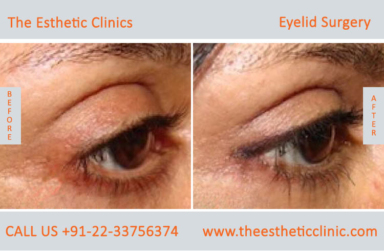 Eyelid Surgery, Blepharoplasty before after photos in mumbai india (4)