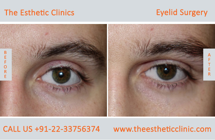 Eyelid Surgery, Blepharoplasty before after photos in mumbai india (5)