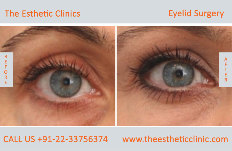 Eyelid Surgery, Blepharoplasty before after photos in mumbai india (6)