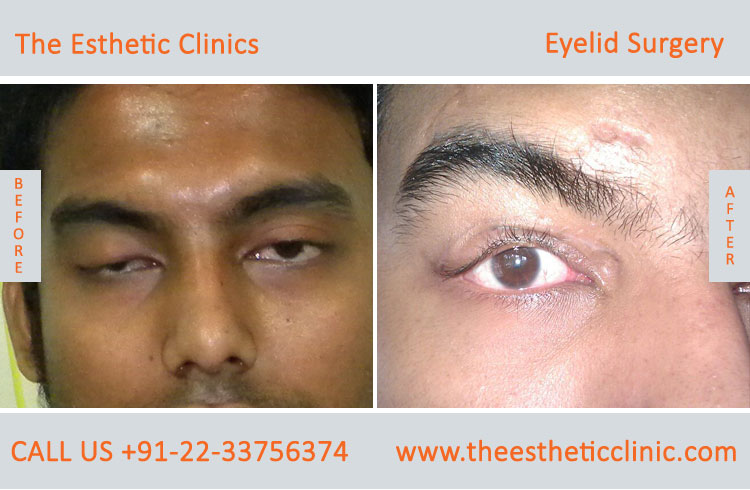 Eyelid Surgery, Blepharoplasty before after photos in mumbai india (7)