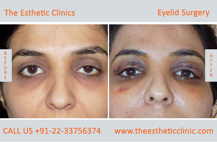 Eyelid Surgery, Blepharoplasty before after photos in mumbai india (9)
