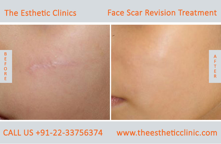 Facial Scars Revision laser Treatment for Face before after photos in mumbai india (1)