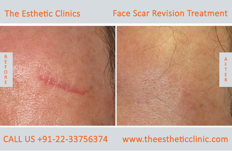 Facial Scars Revision laser Treatment for Face before after photos in mumbai india (6)