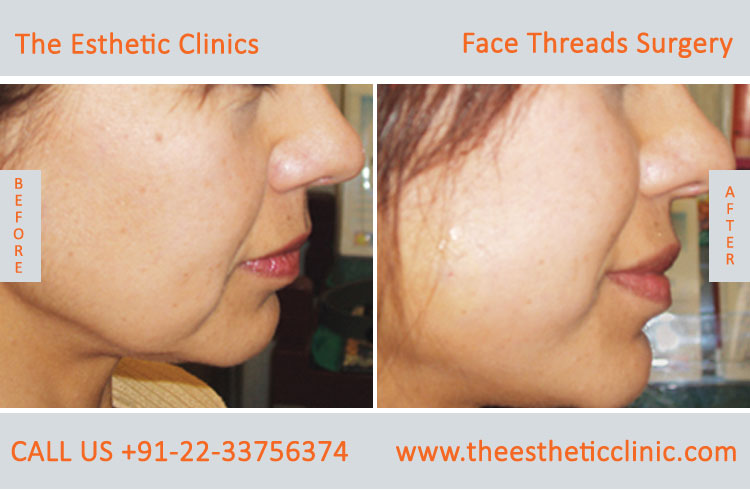 thread facelift, face lifting with threads treatment before after photos in mumbai india (1)