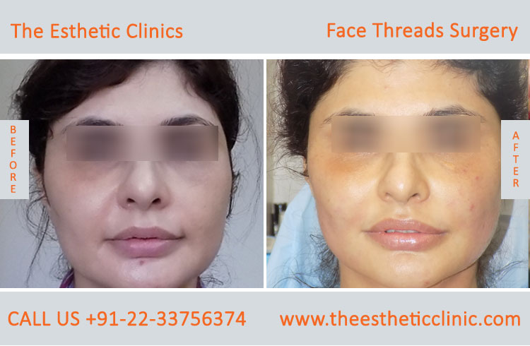thread facelift, face lifting with threads treatment before after photos in mumbai india (10)