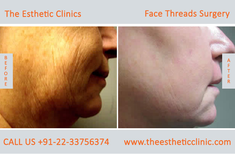 thread facelift, face lifting with threads treatment before after photos in mumbai india (2)