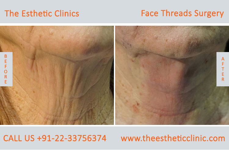 thread facelift, face lifting with threads treatment before after photos in mumbai india (3)